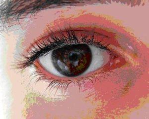 oko-kurz-pryc-s-brylemi